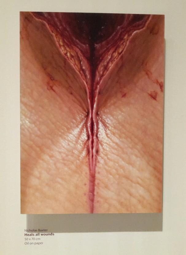 Nicholas Baxter - Heals all wounds